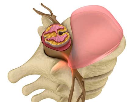 medula espinal: Prolapso de disco intervertebral closeup