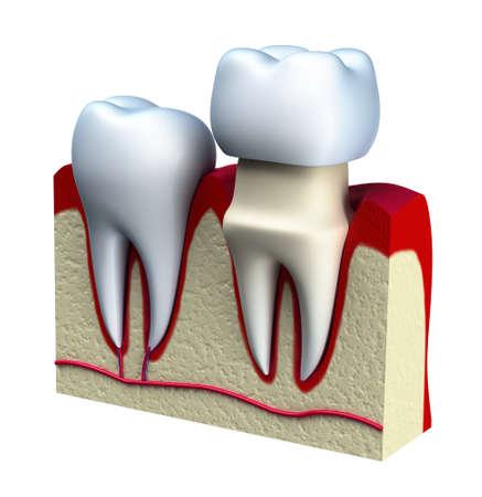 Dentaire processus d'installation couronne, isolé sur blanc