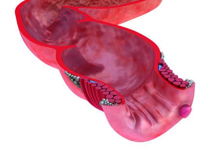 fistula: Hemorrhoids   Anal disorders