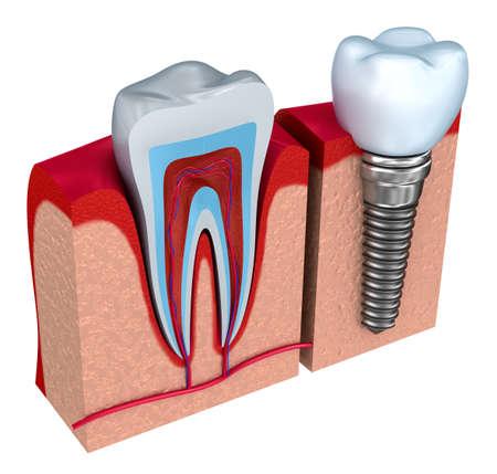 dientes con caries: Anatom�a de los dientes sanos y de implantes dentales en el hueso de la mand�bula. Foto de archivo