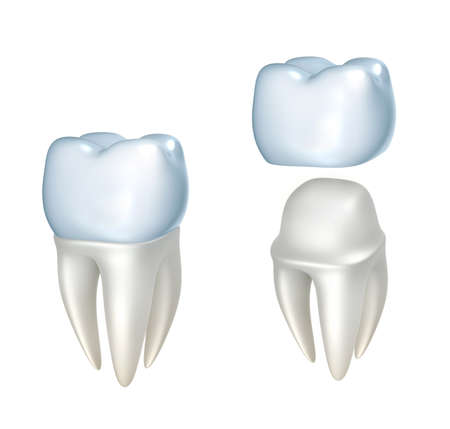 tooth ache: Dental crowns and tooth, isolated on white