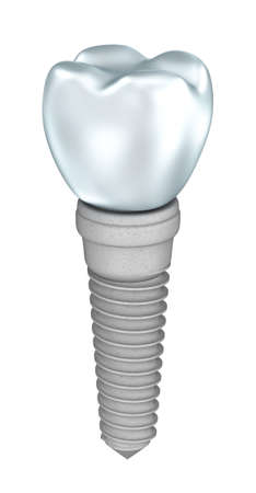 embedded: Dental implant isolated on white