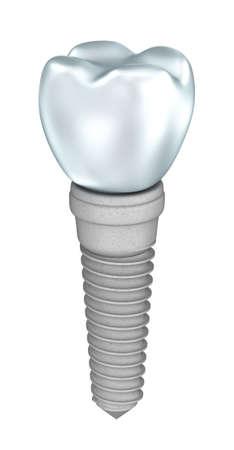 Implantes dentales aislados en blanco Foto de archivo - 40005746