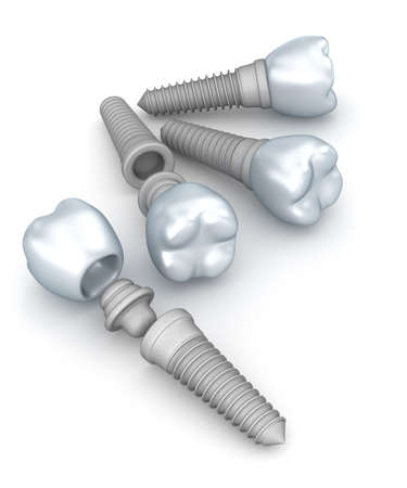 implanted: Dental implants crowns and pins isolated on white