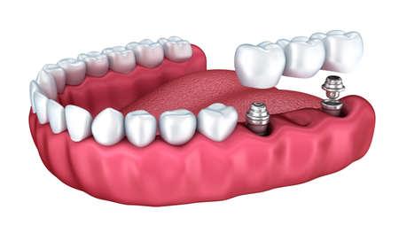 3d dents inférieures et implant dentaire isolé sur blanc