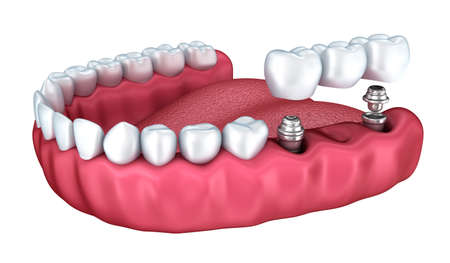 crowns: 3d lower teeth and dental implant isolated on white Stock Photo
