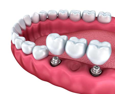 下の歯とインプラントは、白で隔離のクローズ アップ ビュー