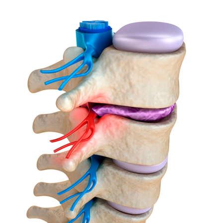 columna vertebral: M�dula espinal bajo la presi�n de disco abultada Foto de archivo