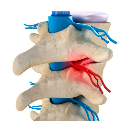 intervertebral: Spinal cord under pressure of bulging disc
