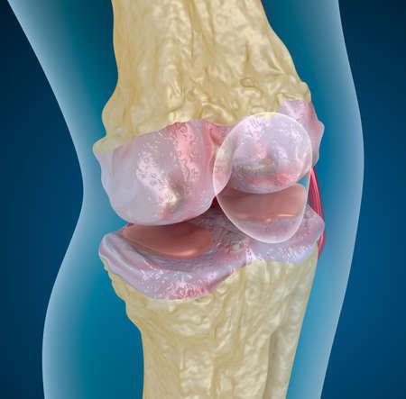 osteoporosis: La osteoporosis de la articulación de la rodilla