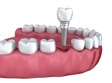 3d lower teeth and dental implant isolated on white Foto de archivo