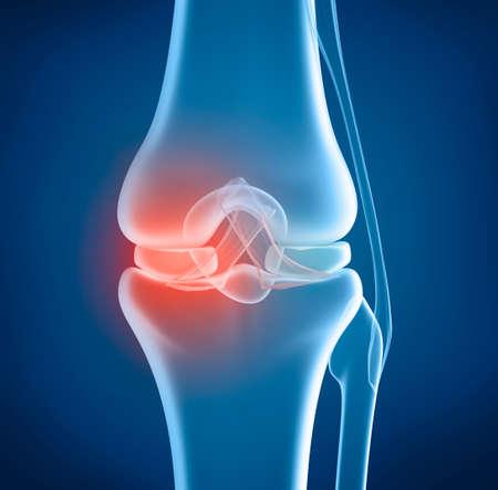 nude body: Knee problem xray view