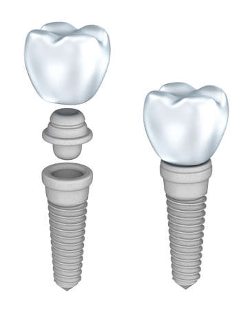artificial teeth: Dental implant isolated on white