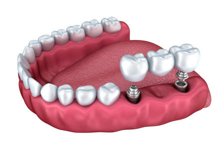 denture: 3d lower teeth and dental implant isolated on white Stock Photo