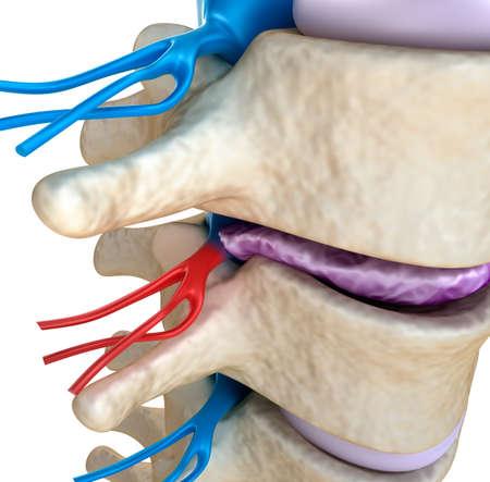 medula espinal: Médula espinal bajo la presión de disco abultada Foto de archivo