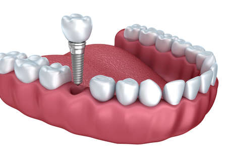 3d lower teeth and dental implant isolated on white Фото со стока