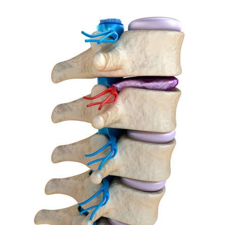 colonna vertebrale: Midollo spinale sotto pressione di rigonfiamento del disco Archivio Fotografico