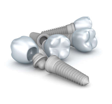 dental implants: Dental implants, crowns and pins isolated on white
