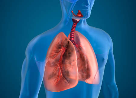 infected: Diseased lungs x-ray view Stock Photo