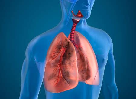 person smoking: Pulmones enfermos vista de rayos x
