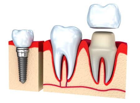 buckler: Dental crown, implant and teeth, 3d image.