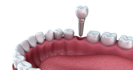 implant: 3d lower teeth and dental implant isolated on white Stock Photo
