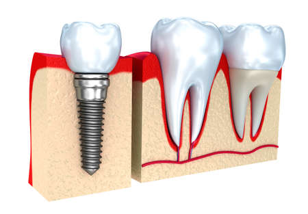 dental implant: Dental crown, implant and teeth, 3d image.