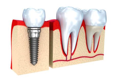 Kroon, implantaat en tanden, 3d beeld.