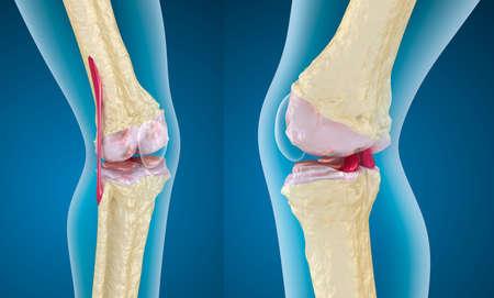 L'ostéoporose de l'articulation du genou Banque d'images