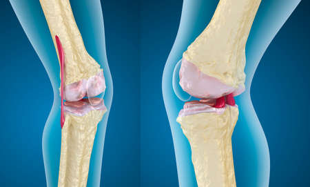 Osteoporosis of the knee joint