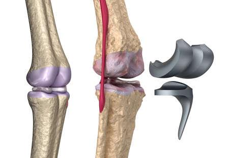 de rodillas: Rótula de la rodilla y titanio. Aislados en blanco