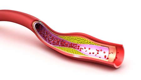 globulos blancos: Placa de colesterol en los vasos sanguíneos Foto de archivo
