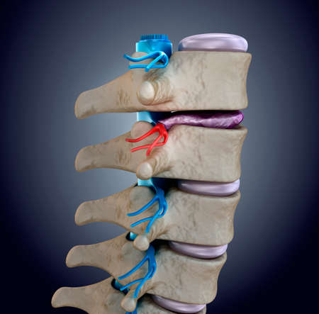 herniated: Spinal cord under pressure of bulging disc