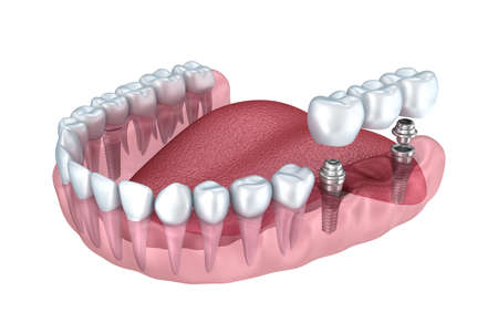 dental: 3d lower teeth and dental implant transparent render isolated on white