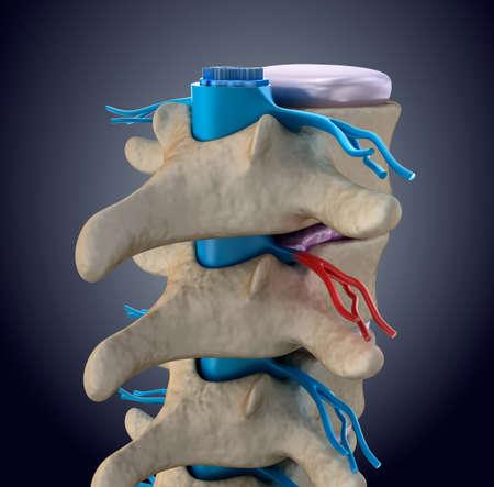 medula espinal: M�dula espinal bajo la presi�n de disco abultada Foto de archivo