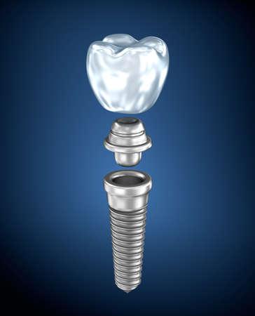 implanted: Dental titanium implant Stock Photo