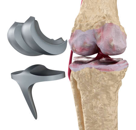 Knee and titanium hinge joint. Isolated on white 스톡 콘텐츠