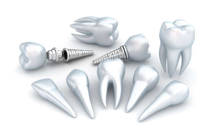 embed: Teeth and implant, Dental concept over white