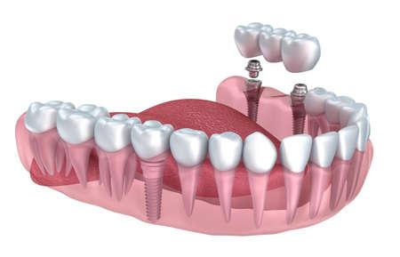 3d dents inférieures et implant dentaire transparent rendre isolé sur blanc