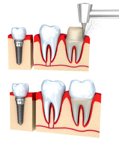 buckler: Dental crown installation process, isolated on white