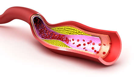 cholesterol: Cholesterol plaque in blood vessel, illustration