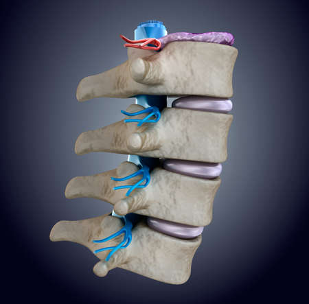 spinal cord: Spinal cord under pressure of bulging disc