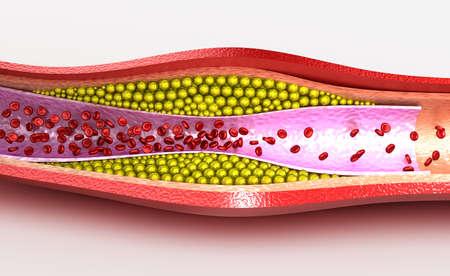 globulos blancos: Placa de colesterol en los vasos sanguíneos, ilustración