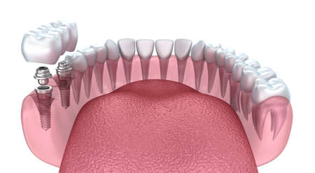 implanted: 3d lower teeth and dental implant transparent render isolated on white
