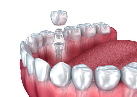 implanted: Tooth human implant, 3d illustration