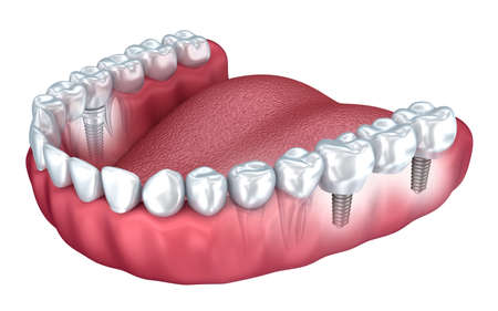 implanted: 3d lower teeth and dental implant isolated on white Stock Photo