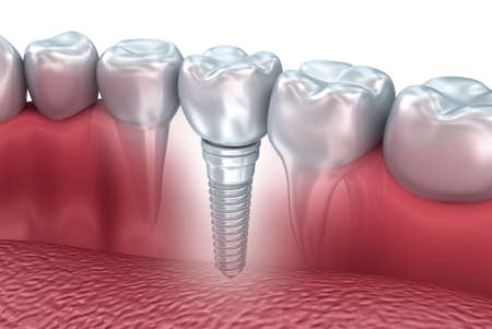dentaire: Tooth implant humain, illustration 3d Banque d'images