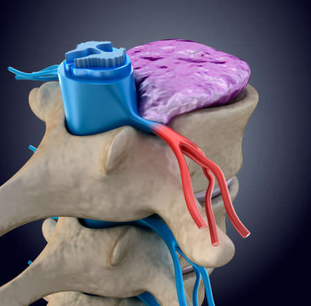 spinal disc: Spinal cord under pressure of bulging disc