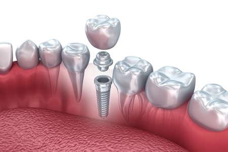Tooth menschliche Implantat, 3D-Darstellung Standard-Bild - 50149518