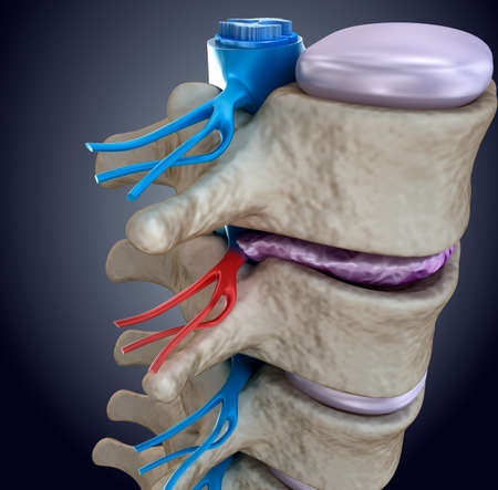 protrude: Spinal cord under pressure of bulging disc. 3D rendering